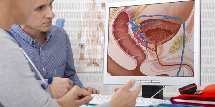 la radioterapia después de la extracción de próstata afecta la erección