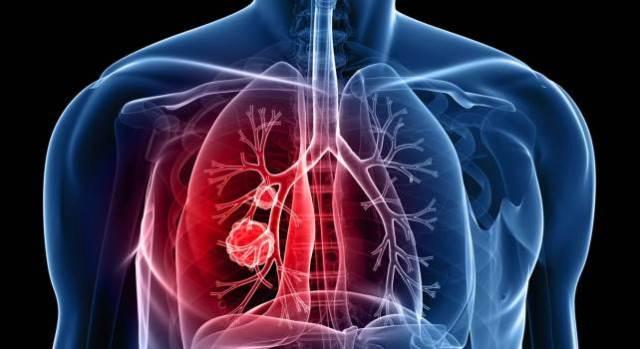 analisis+de+sangre+detectan+cancer